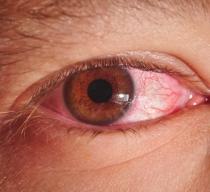 pink eye conjunctivitis